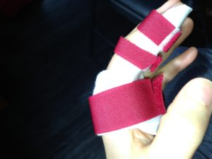 red splint side
