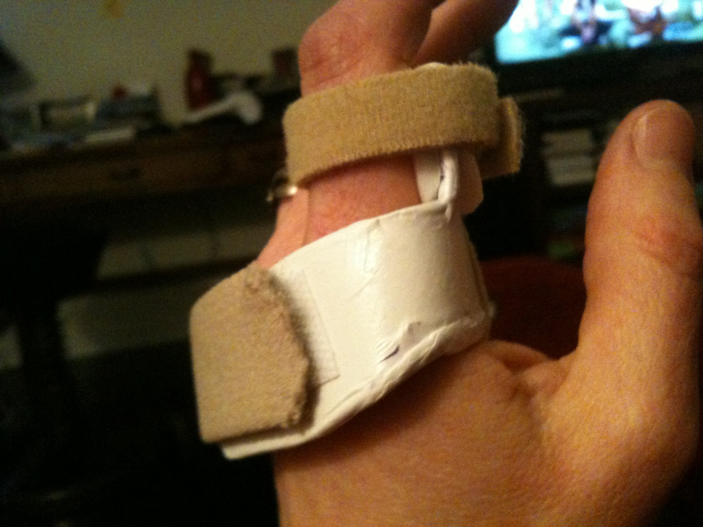 Closeup hand splint